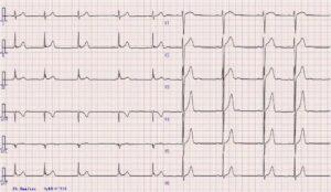 心電図の画像